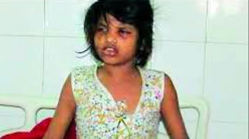 The condition of the girl is slowly improving, doctors said.
