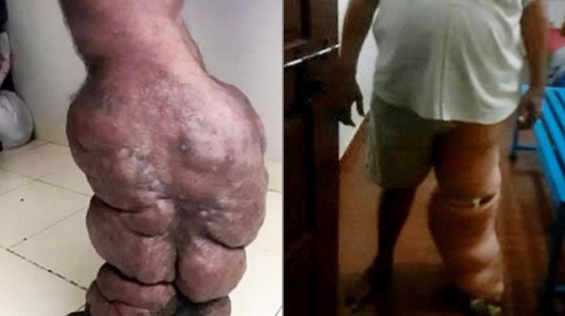 He first thought of the swelling as temporary (Photo: YouTube)