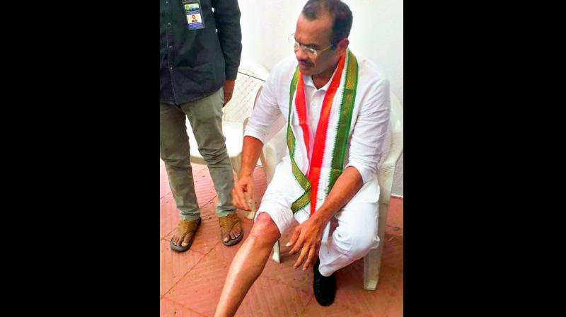 Komatreddy Venkat Reddy show the injuries he sustained in the Assembly when the Budget Session commenced.