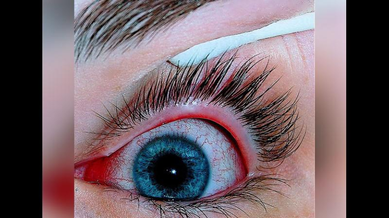 There are currently only two approved drugs to treat dry eye, and they don't work for everyone, especially those with severe disease. (Photo: AN()