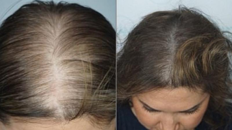 Hair Tattoos Help Woman Regain Confidence After Balding Made Her A