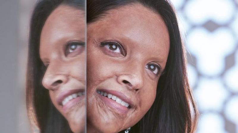Deepika Padukone as acid attack survivor