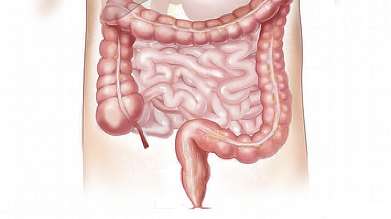 Diverticulitis is an inflammation of small pouches in the walls of the colon. (Photo: Pixabay)