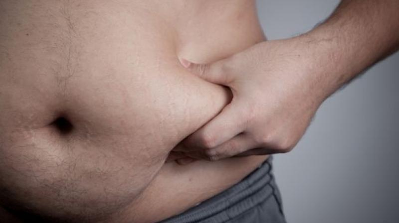 US spends almost USD 200 billion a year on obesity-related health care costs. (Photo: Pixabay)