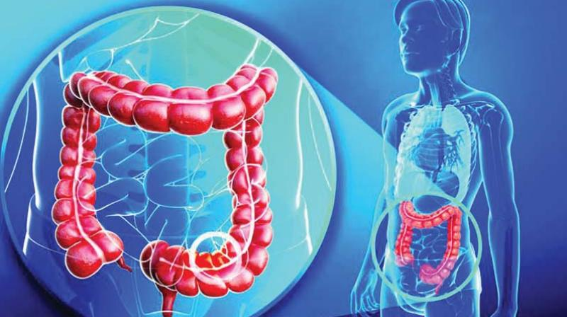 Rectal and colon cancers, depending on the origin, share common traits and are grouped together and collectively known as colorectal cancer.