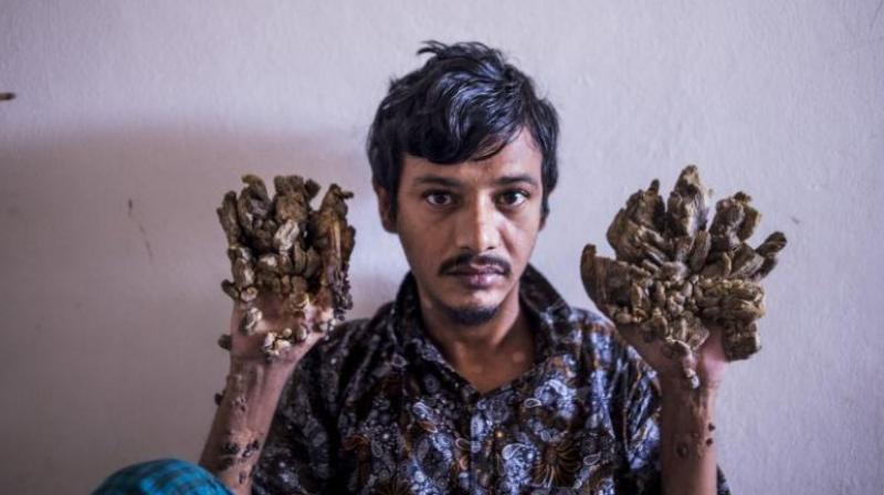 Doctors had believed they had beaten the disease but Bajandar fled a Dhaka clinic in May last year following a relapse. (Photo: AFP)