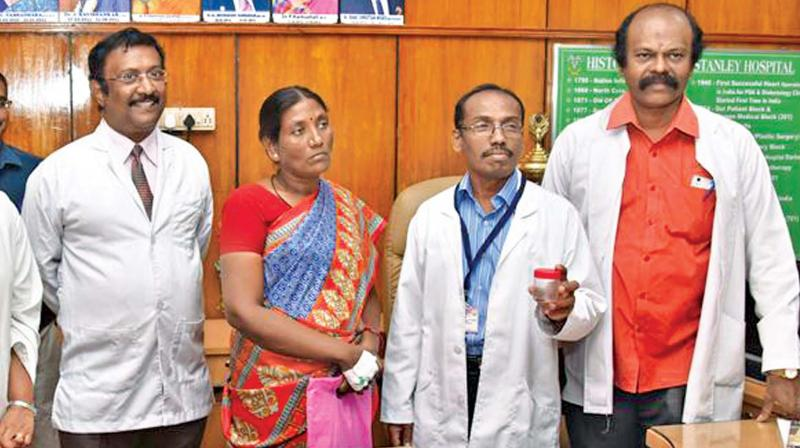 Dean Dr. Ponnumbala Namasivayam holds the  container with the dead cockroach found in a patient's nose at Stanley Medical College and Hospital on Thursday. Patient Selvi, head of the ENT department M. N. Shankar and Resident Medical Officer Dr Ramesh look on.