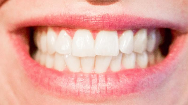 Falling Of Teeth Caused By Stress Dentist Reveals Truth