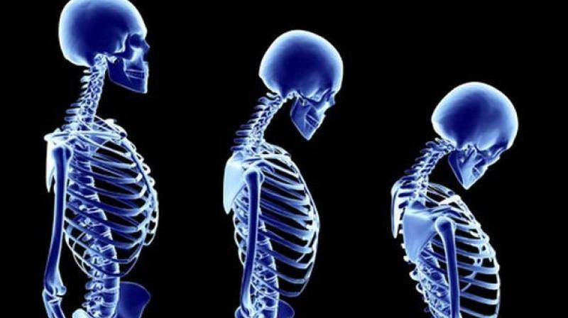 Asian women osteoporosis