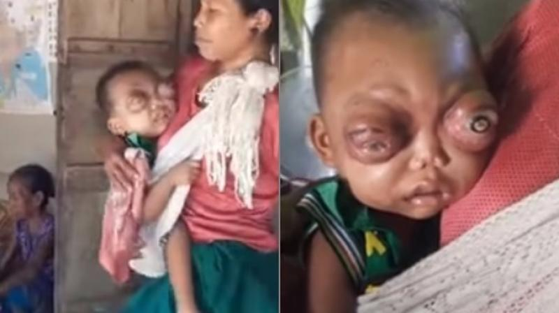 Child with painful swollen eyes may go blind as parents can