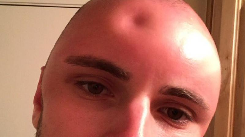 Man hoping to try new hairstyle left with massive dent in forehead