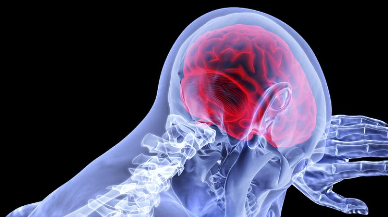 Cell therapy could improve brain function for Alzheimer's disease. (Photo: Pixabay)