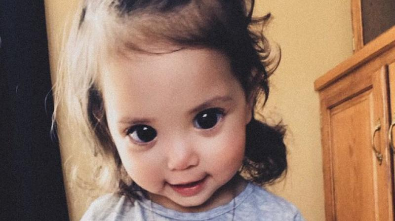A rare genetic disorder is the reason behind this girl's ...