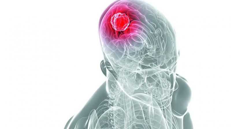 Brain TB is caused by Mycobacterium tuberculosis infection.