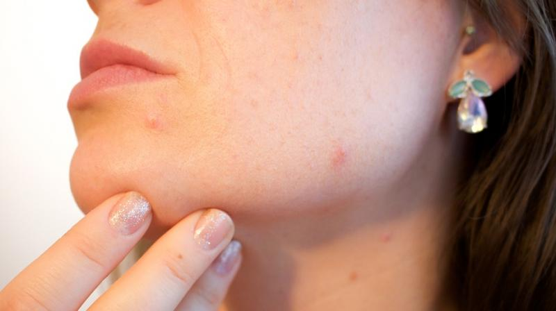 Acne stigma linked to lower overall quality of life. (Photo: Pixabay)