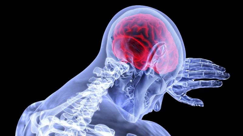 New model can identify factors linked to mortality after traumatic brain injury. (Photo: Pixabay)