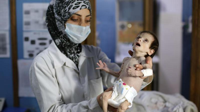 Like hundreds of children in Ghouta, Sahar was suffering from acute malnutrition (Photo: AFP)