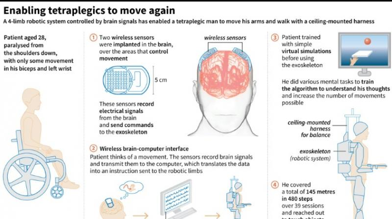 A French man paralysed in a night club accident can walk again thanks to a brain-controlled exoskeleton. (Photo: AFP)