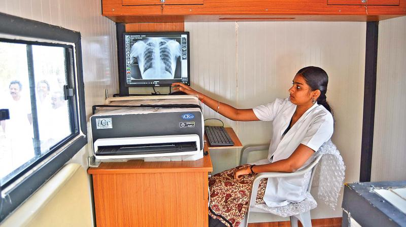 A technician shows the recently launched digital X-Ray machine to detect TB. (Photo: DC)