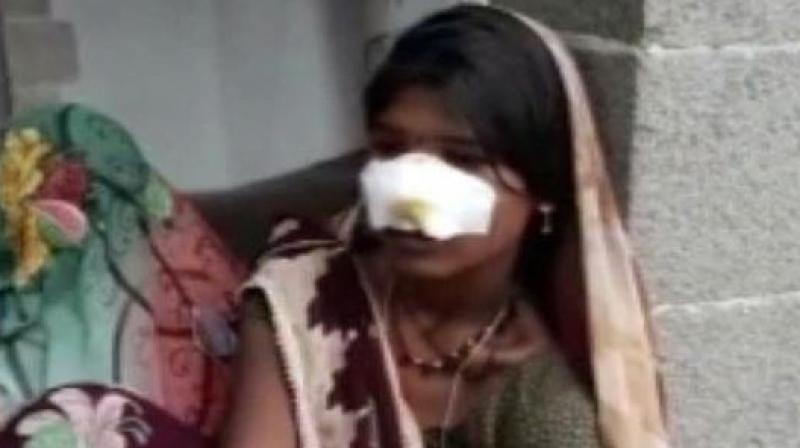 Attackers slit off woman's nose in Madhya Pradesh when she denied doing household and field work. (Photo: ANI)
