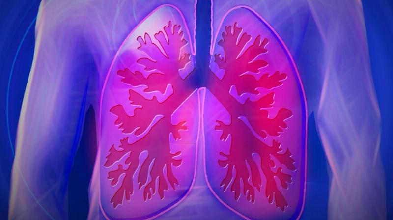 IPF is a chronic disease in which the lungs become increasingly scarred and unable to function. (Photo: ANI)
