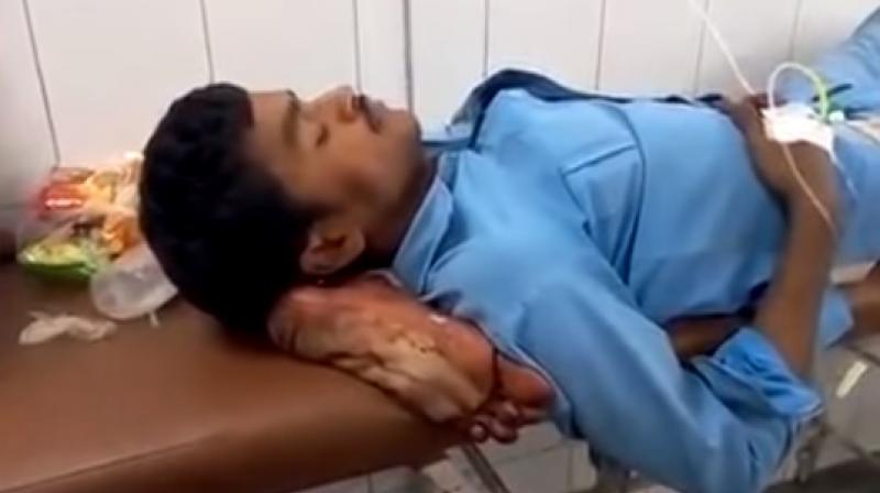 India suspends doctors, launches probe after patient's severed leg used as pillow