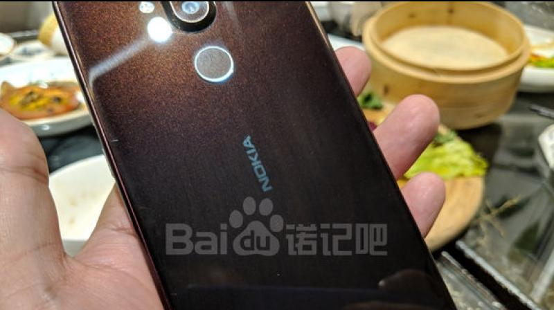 Nokia 7 1 Plus/X7 live images leaked: Report