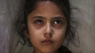 Six-year-old Muneefa Nazir, a Kashmiri girl whose right eye was hit by a marble ball shot allegedly by Indian paramilitary soldiers on Aug. 12, stands outside her home in Srinagar on Sept. 17, 2019. The image was part of a series of photographs by Associated Press photographers Mukhtar Khan, Dar Yasin and Channi Anand which won the 2020 Pulitzer Prize for Feature Photography. (AP)