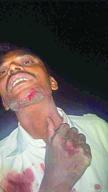 Man attacked by a leopard at Tandur in Vikarabad.