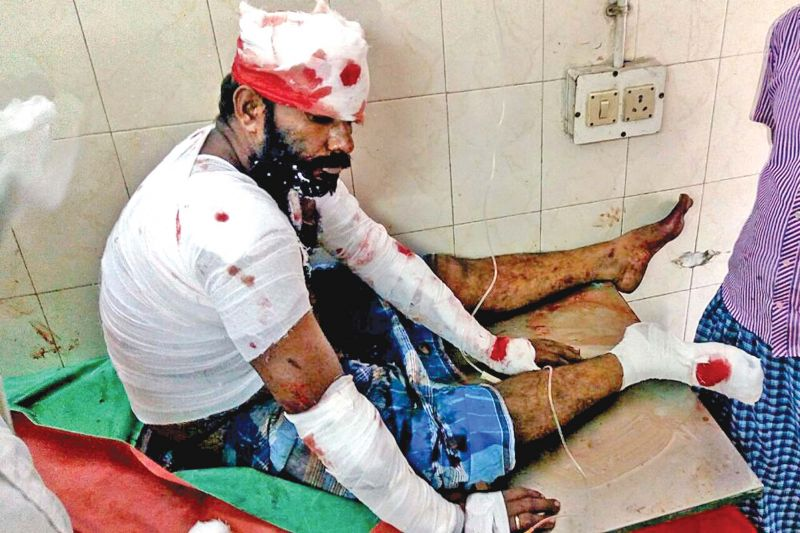 One of the injured receiving  treatment at KMC hospital (Photo: DC)