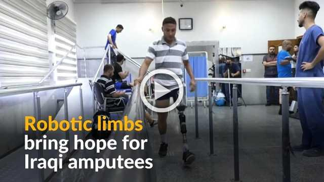Advanced prosthetic limbs offer new lease of life to Iraqi amputees