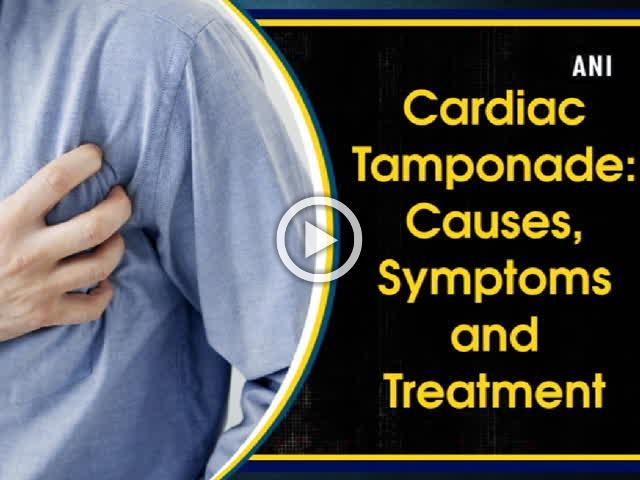 Cardiac Tamponade: Causes, Symptoms and Treatment
