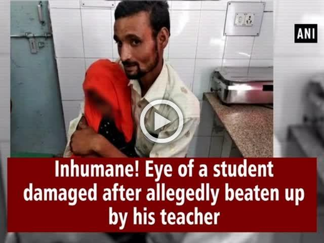 Inhumane! Eye of a student damaged after allegedly beaten up by his teacher