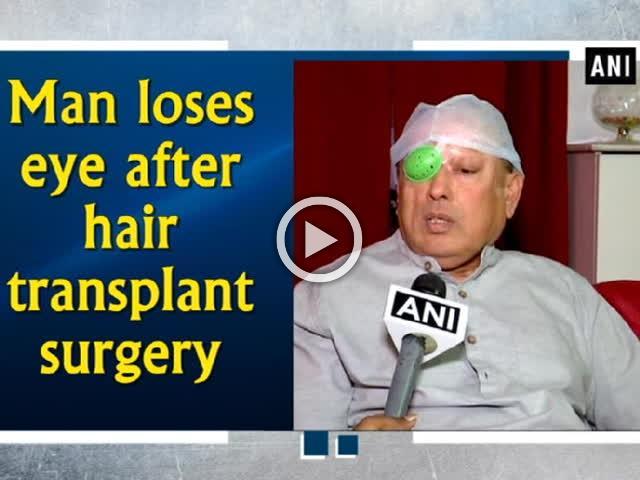 Man loses eye after hair transplant surgery