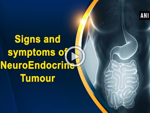 Signs and symptoms of NeuroEndocrine Tumour
