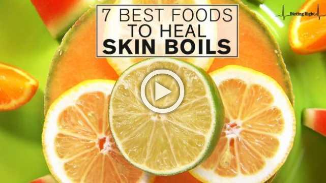 7 Best Foods To Heal Skin Boils
