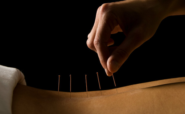 acupuncture_feature_image