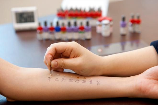 allergy test (1)