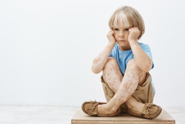 โรคด่างขาวในเด็ก