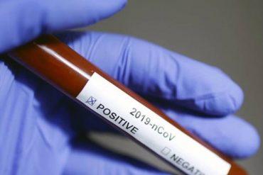 เลือดกรุ๊ปโอติดโควิด-19