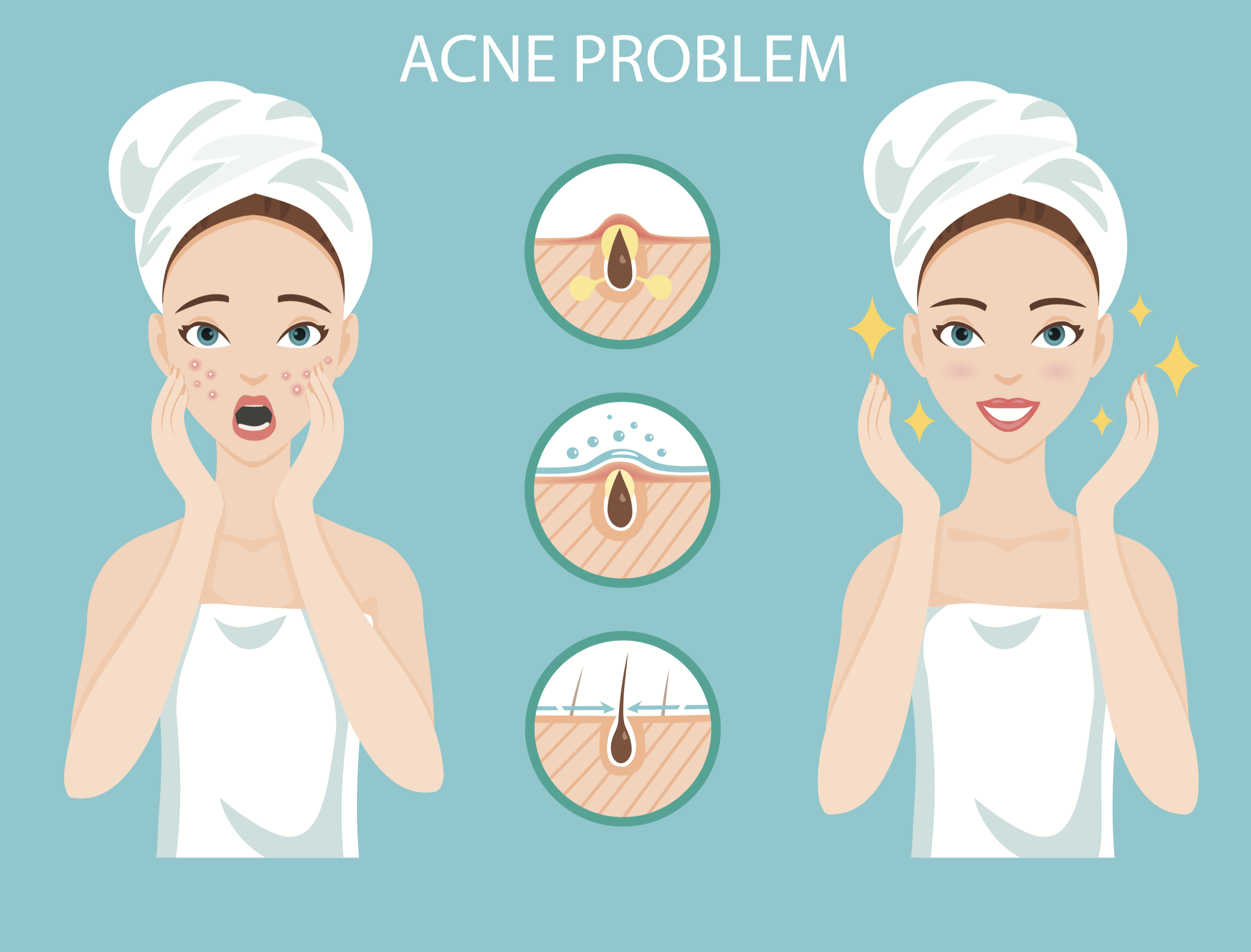 1. Cure Acne