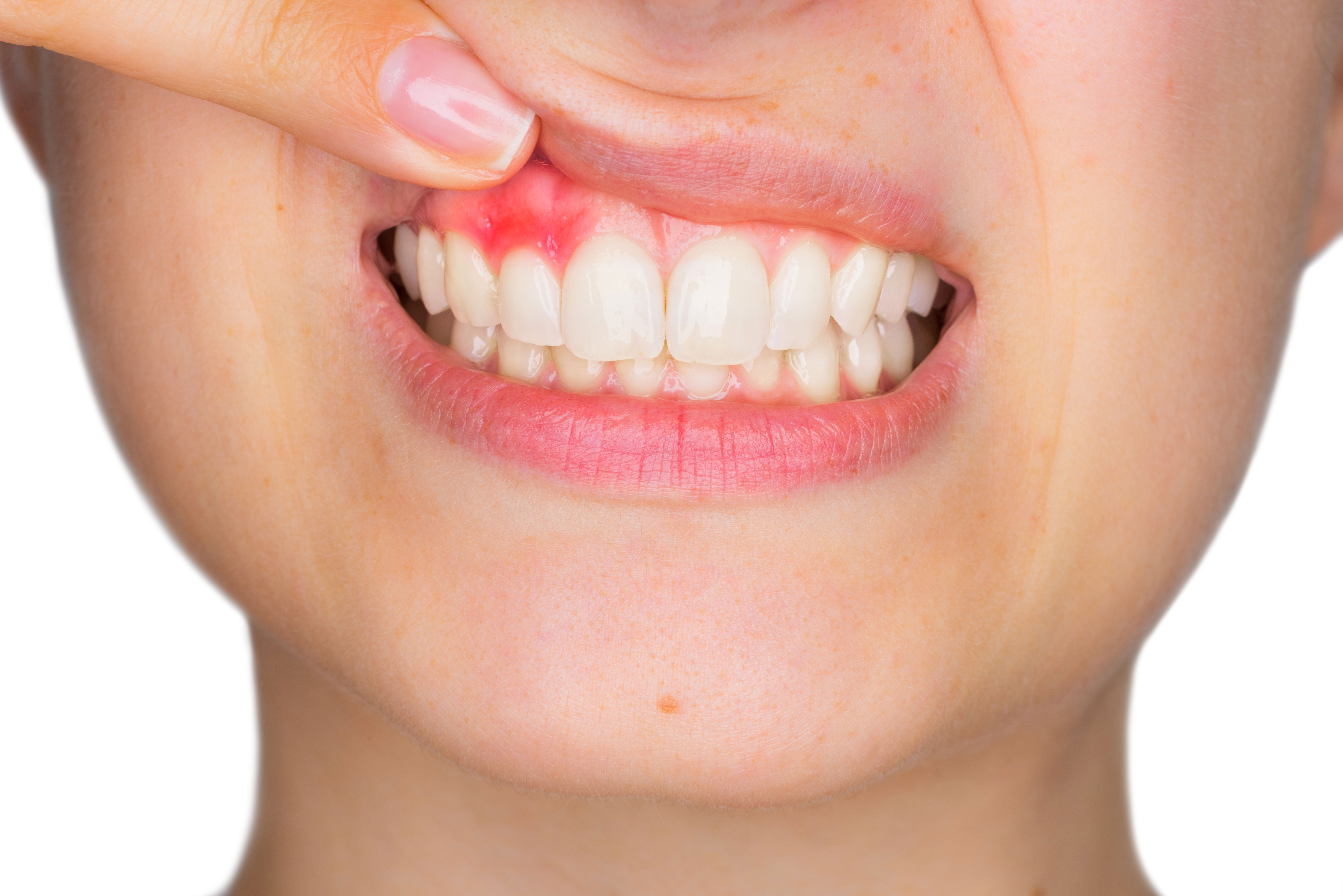 9. Teeth And Gum Care