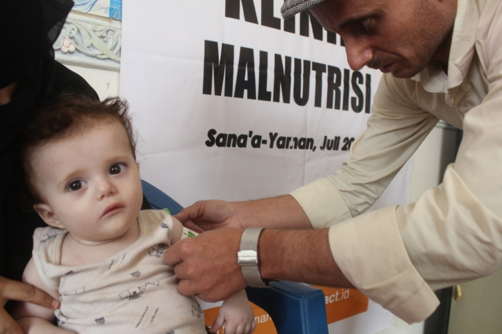 Health Assistance from ACT Improves the Nutrition of Yemeni Children's image
