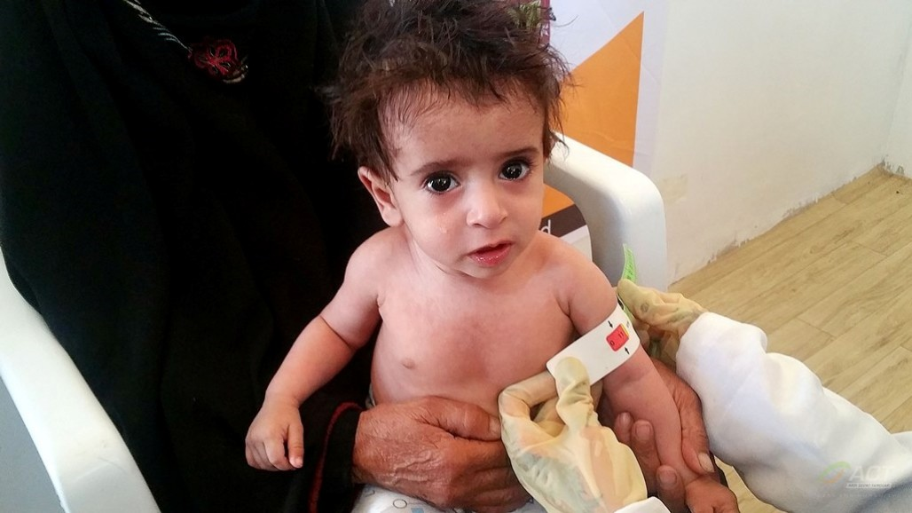 ACT Provides More Health Service for Yemeni Women and Children's image