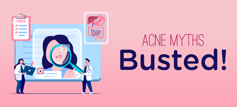 Acne myths busted