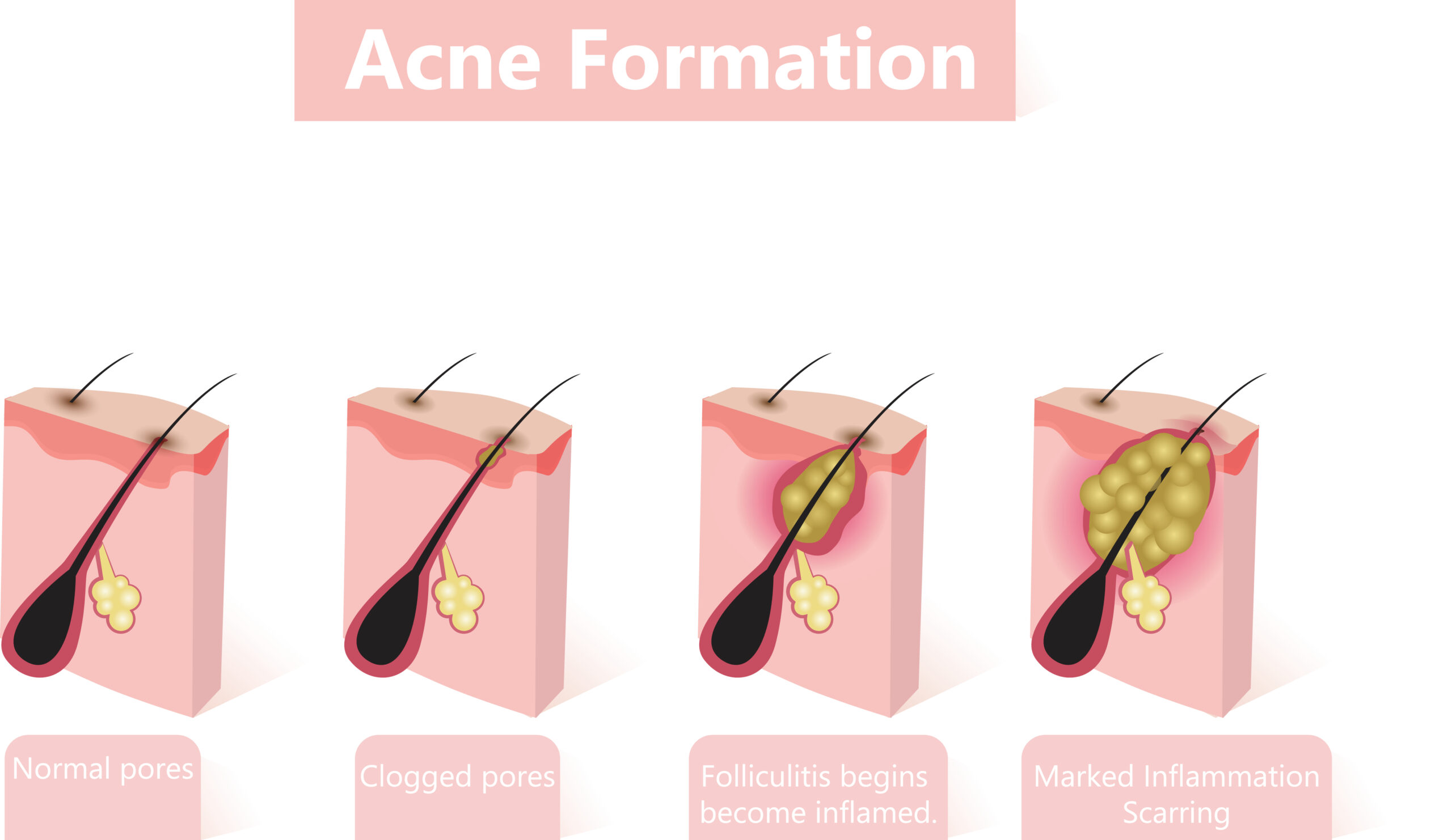 Stages of acne formation