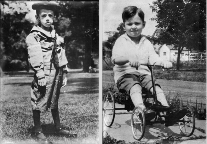 Before and after photos of Teddy Ryder, one of Frederick Banting's first patients. In the left-hand photo, Teddy is using the starvation diet treatment; in the right-hand photo, he is using the insulin treatment.