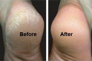 Heel-Crack before and after